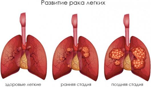 Развитие рака легких