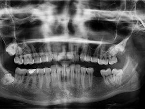 Рентген снимок челюсти
