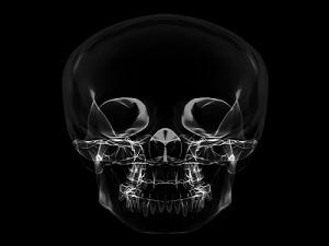 Рентген снимок черепа