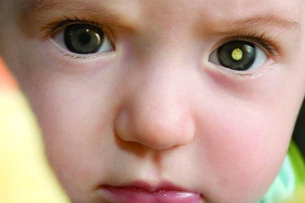 Первый симптом рака глаза у ребенка