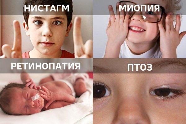 Детские заболевания глаз