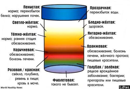 Почему образуется повышенное содержание соли в моче?