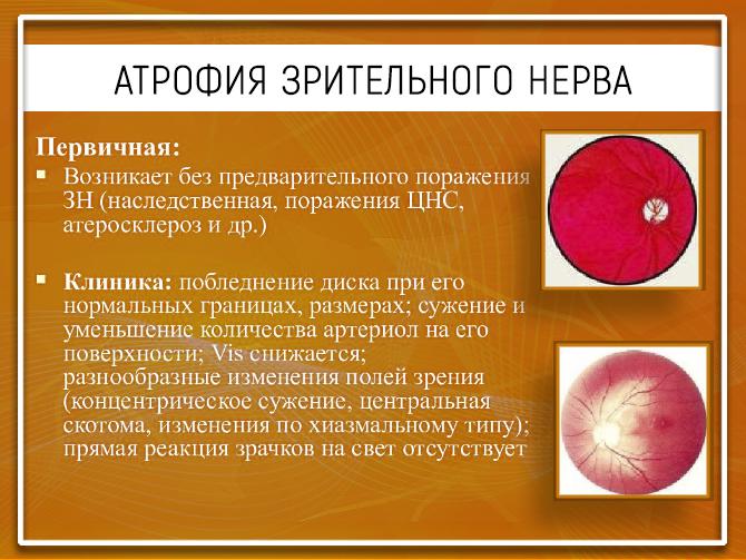 Симптомы атрофии ЗН