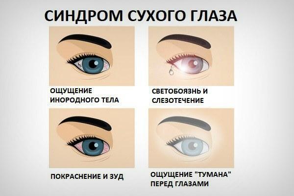 Симптомы синдрома сухого глаза