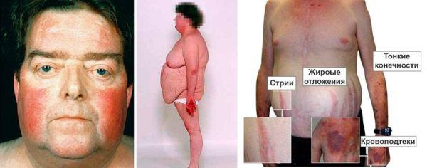Что такое болезнь Иценко-Кушинга, как проявляется и лечится?