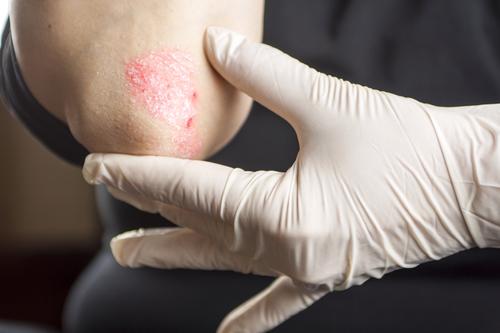 Аллергия на локтях