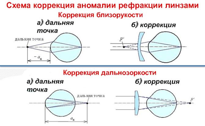 Схема коррекции аномалии рефракции линзами