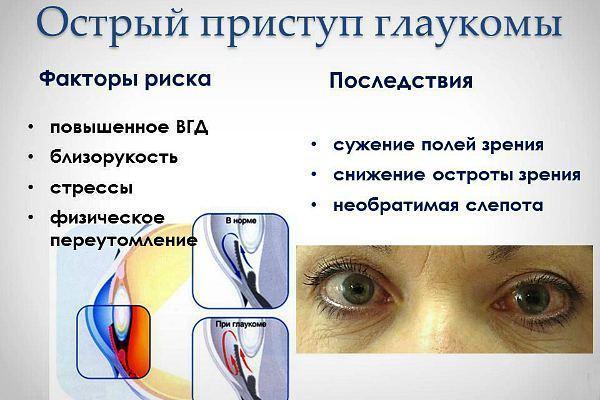 Риск и последствия острого приступа глаукомы