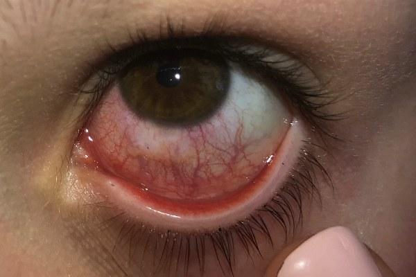 Покраснение глаза из-за соринки