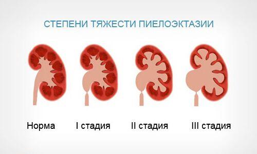 Особенности пиелоэктазии почек у взрослых, лечение заболевания