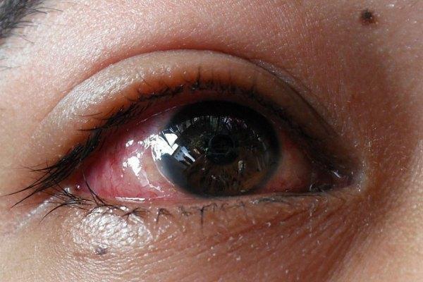 Термический ожог на глазу