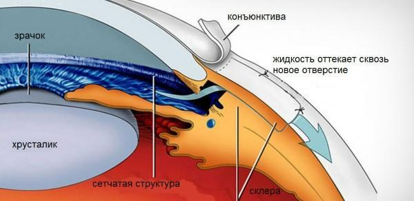 Трабекулэктомия