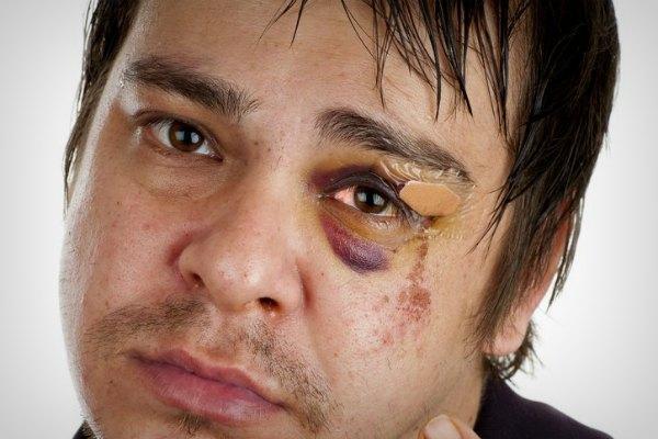 Покраснение глаза после травмы