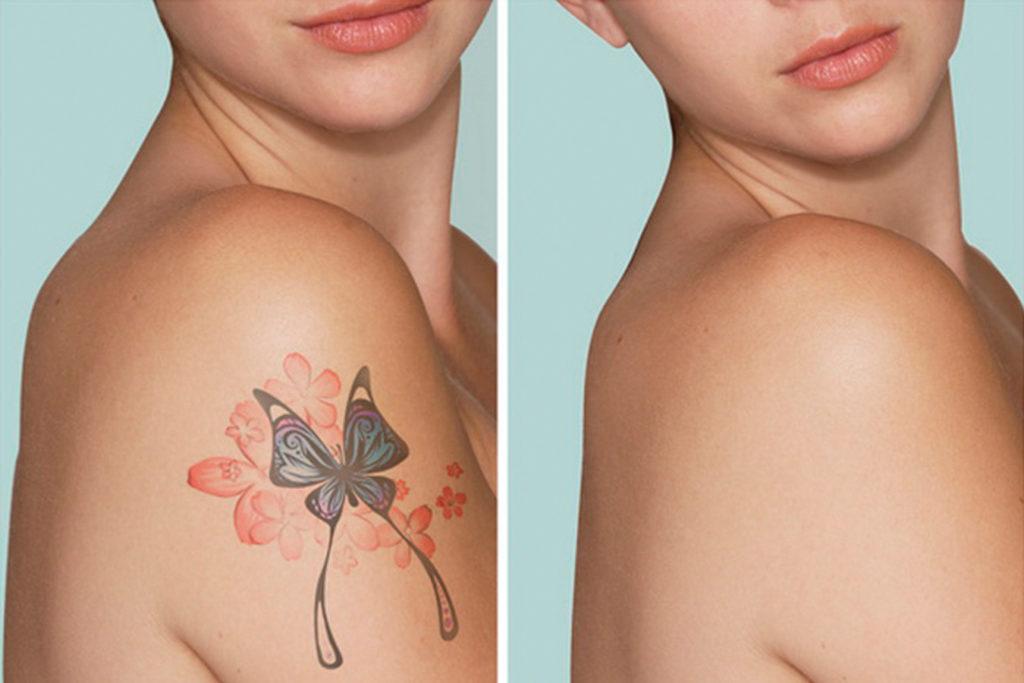 Аллергия на татуировку