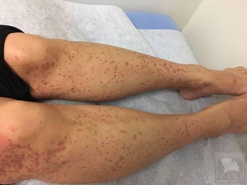 Аллергический васкулит: разновидности, патогенез и способы лечения заболевания у взрослых и детей