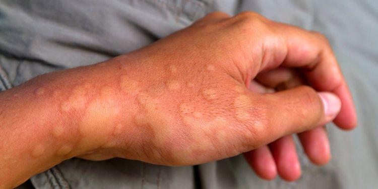 Может ли мята стать причиной аллергии у ребёнка и взрослого?