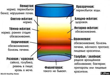 Как и зачем проводится общий анализ мочи?