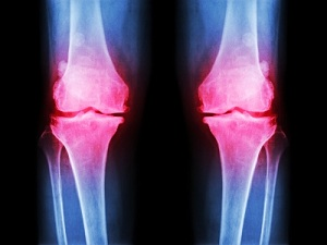 Виды бедренной остеомы