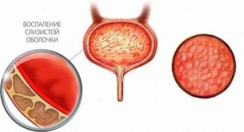 Особенности цистита у женщин, его симптомы и лечение