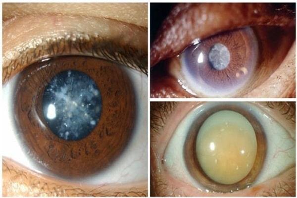 Формы катаракты