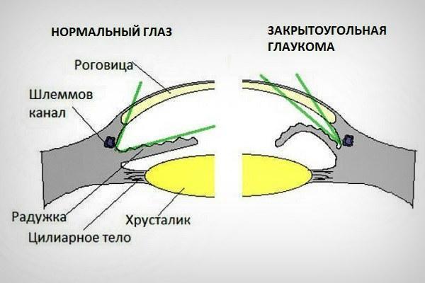 Нормальный глаз и закрытоугольная глаукома