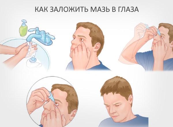 Использование глазных мазей