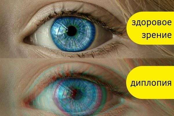 Двоится в глазах лечение