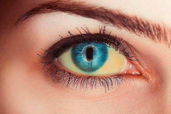 Белки глаз желтые